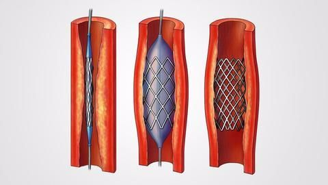 Govt warns companies against creating artificial shortage of stents